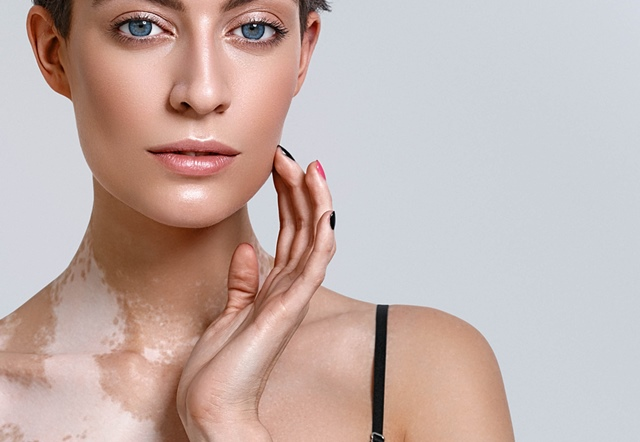 What is vitiligo and how to prevent and cure symptoms with home remedies and diet?