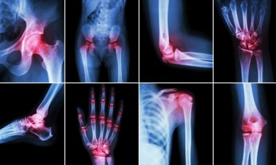 Foods to Relieve Arthritis Pain- Anti-Inflammatory foods