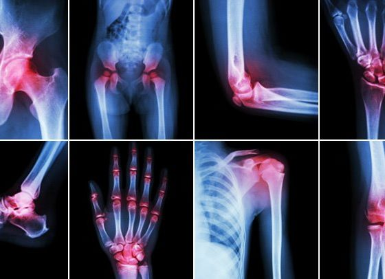Foods to Relieve Arthritis Pain- Anti-Inflammatory foods