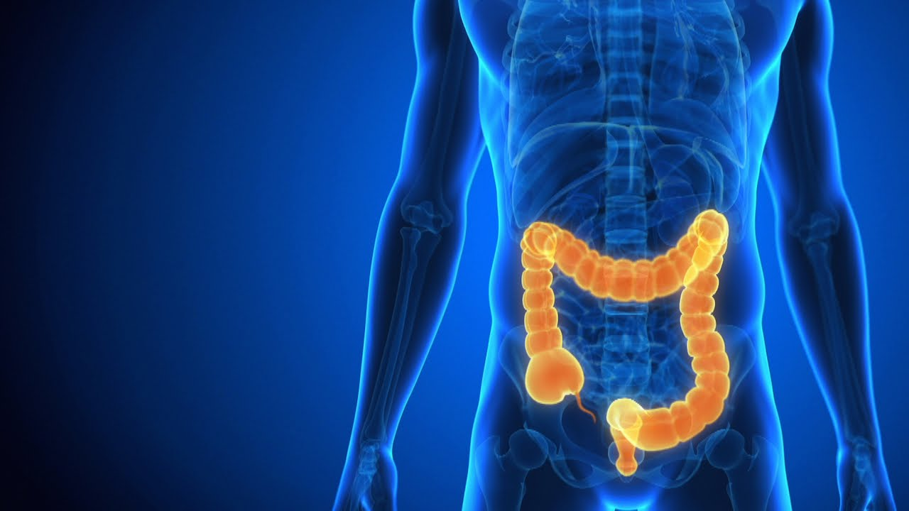 Crohn's disease – Dietary Recommendations and Nutritional Deficiencies